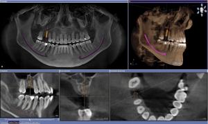 Qué es un implante dental 1
