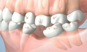 Qué es un implante dental 3