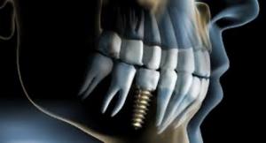 Qué es un implante dental 6