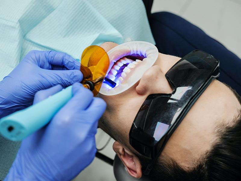 Ortodoncia y estetica dental Mijas